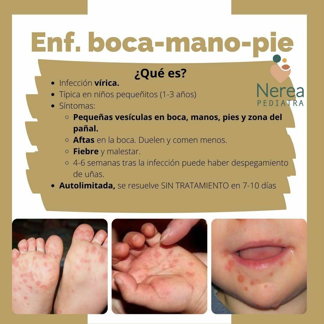 enfermedad mano pie boca
